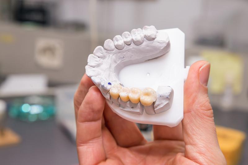 Dental Bridges to fix bite