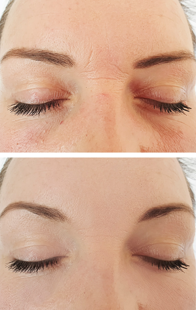 Wrinkle filler before and after