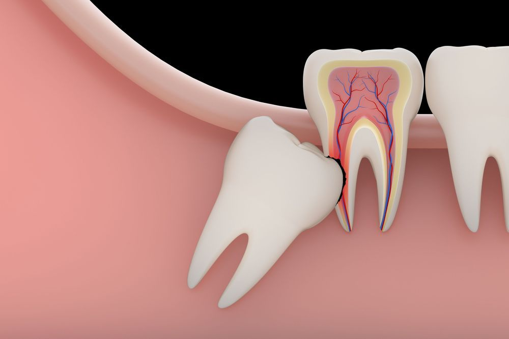 What Are The Signs Of Wisdom Teeth Pain?