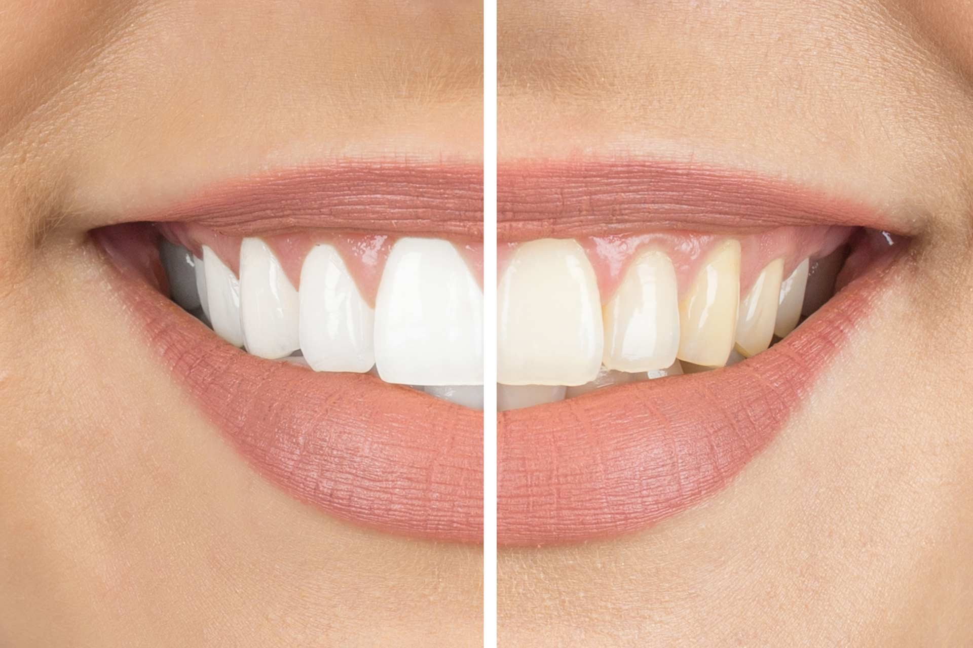 Whitening tips: How to avoid gum burn/irritation