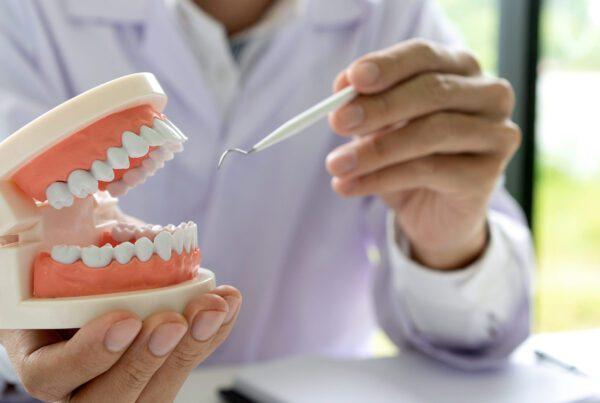 mouth rehab